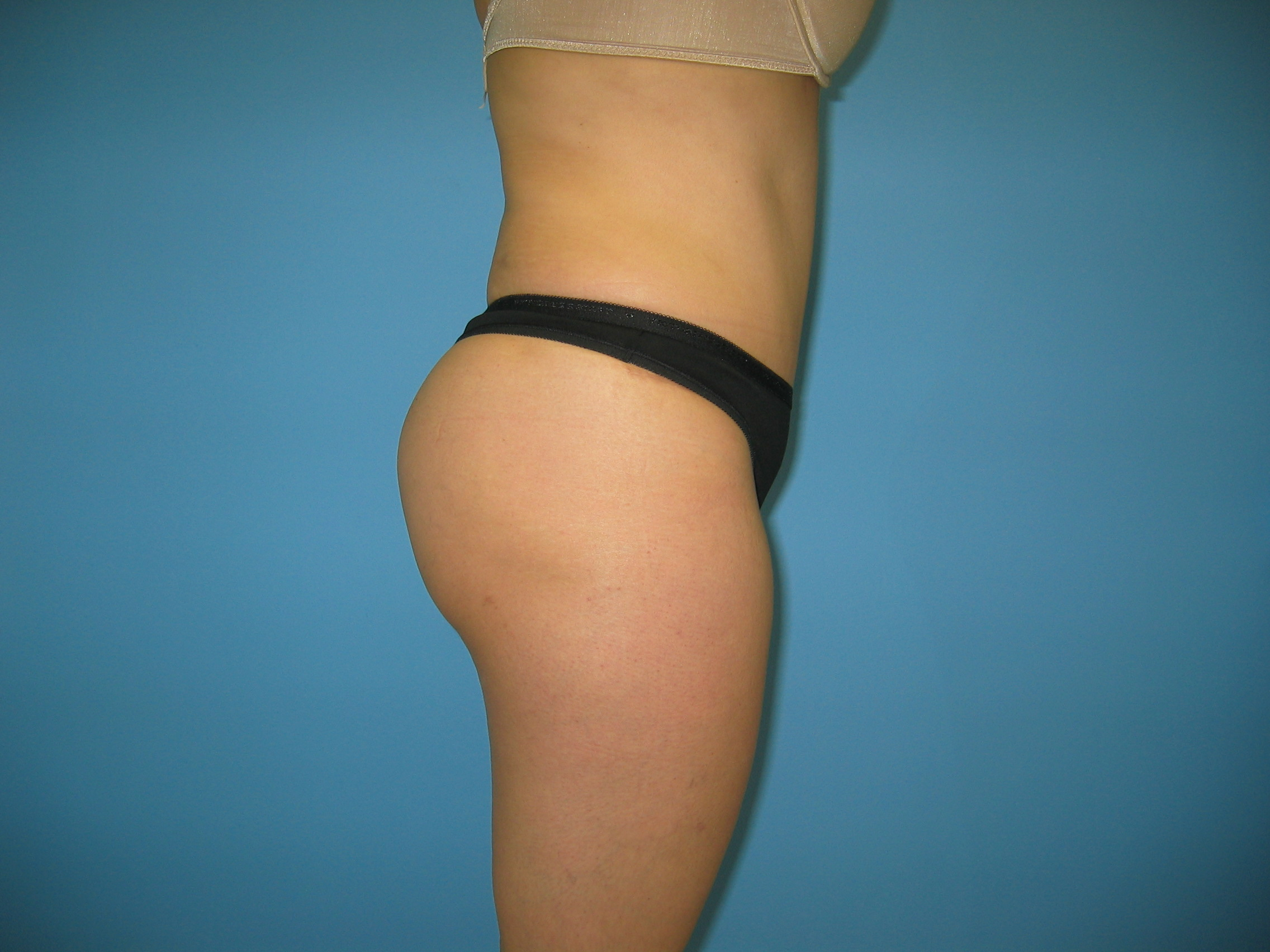 Brazilian buttock lift tummy tuck patient