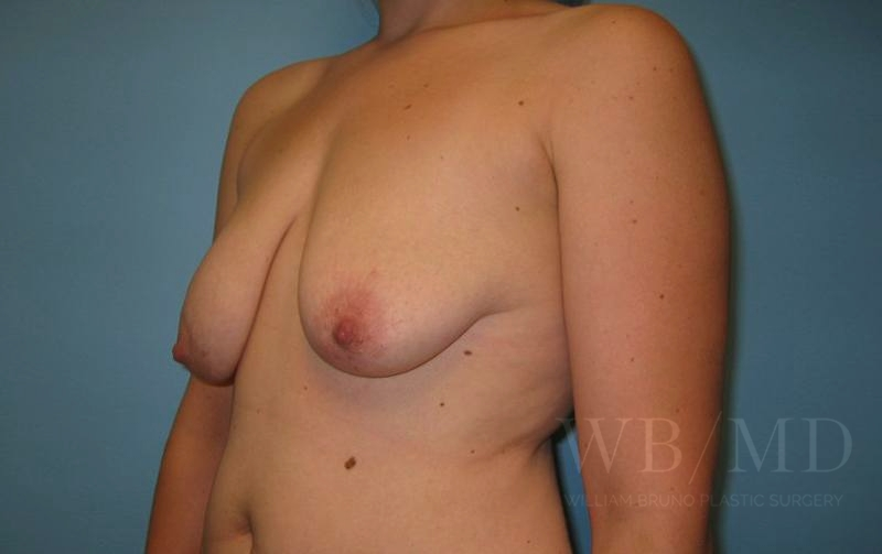 22 - before breast lift with augmentation photo