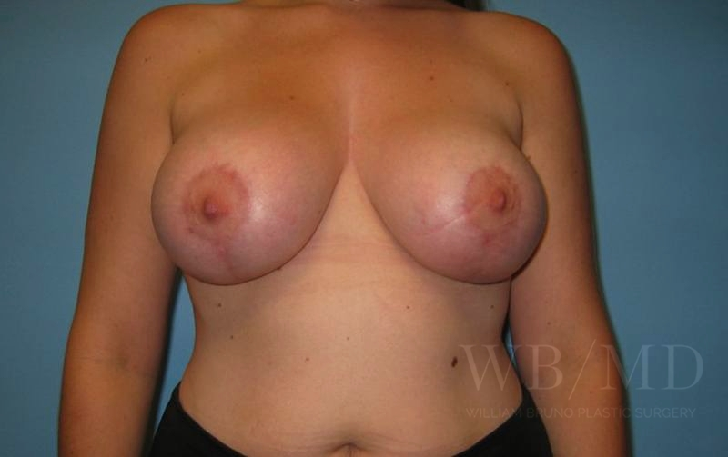 78 - after breast lift with augmentation photo