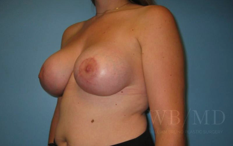 79 - after breast lift with augmentation photo