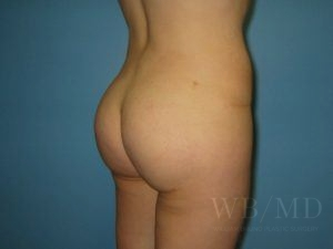 Patient 3a After Brazilian Butt Lift