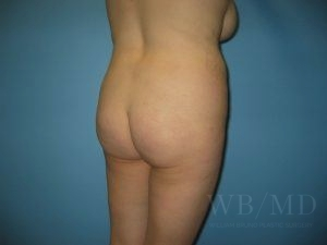 Patient 3a Before Brazilian Butt Lift
