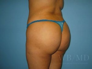 Patient 4a After Brazilian Butt Lift