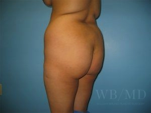 Patient 4a Before Brazilian Butt Lift