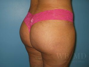 Patient 5a After Brazilian Butt Lift