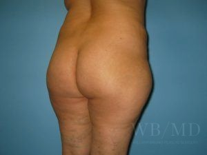 Patient 5a Before Brazilian Butt Lift