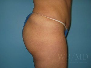 Patient 6a After Brazilian Butt Lift