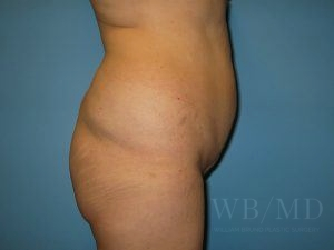 Patient 6a Before Brazilian Butt Lift