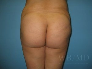 Patient 7a After Brazilian Butt Lift