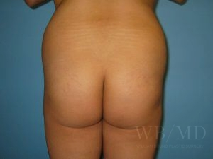 Patient 7a Before Brazilian Butt Lift