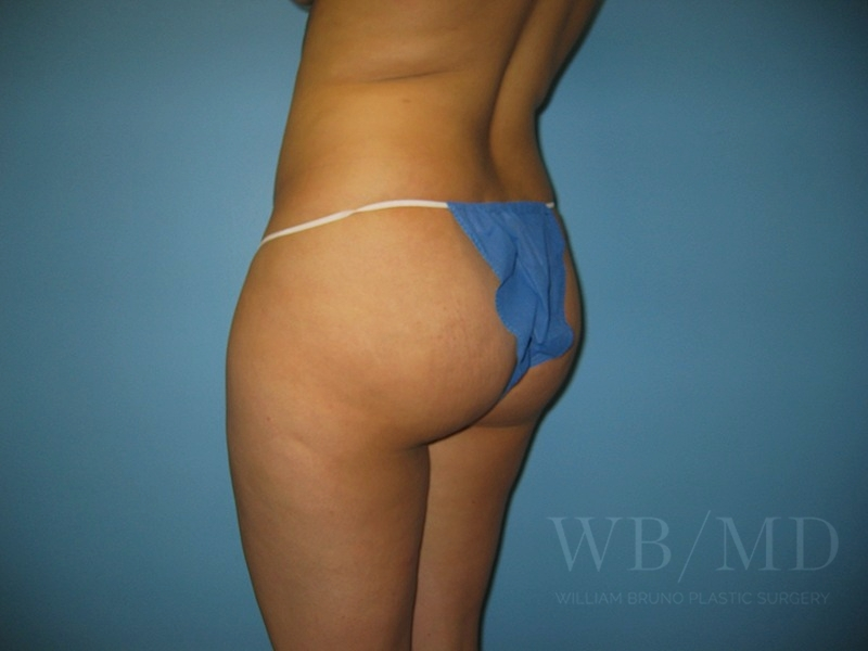 Patient 1a Before Brazilian Butt Lift