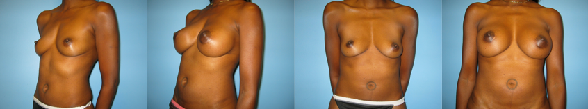 breast-augmentation-beverly-hills