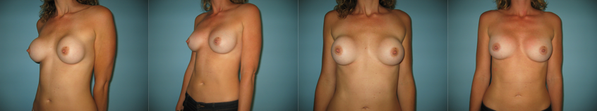 breast-revision-beverly-hills