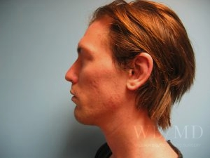 Patient 2a After Chin Implant