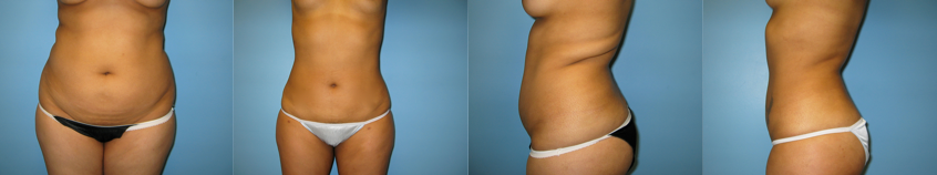 liposuction-gallery