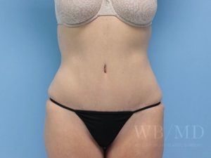 Patient 9a After Tummy Tuck