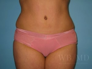 Patient 4a After Tummy Tuck