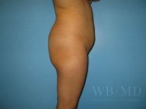 Patient 10a Before Brazilian Butt Lift