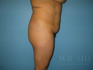 Patient 15a Before Brazilian Butt Lift