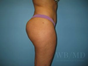 after brazian buttlift 25.1