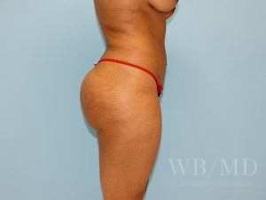 after brazian buttlift 28.1