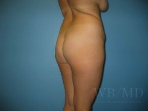 Patient 9a Before Brazilian Butt Lift