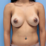 Patient 55a After Breast Augmentation