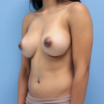 Patient 55b After Breast Augmentation