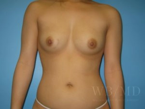 Patient 11a Before Breast Augmentation