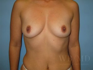 Patient 13a Before Breast Augmentation
