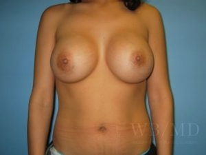 Patient 14a After Breast Augmentation