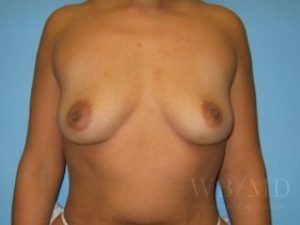 Patient 15a Before Breast Augmentation