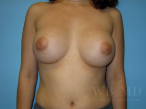 Patient 16a After Breast Augmentation Copy