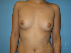 Patient 16a Before Breast Augmentation Copy