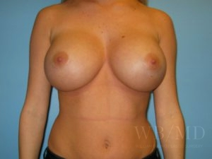 Patient 18a After Breast Augmentation
