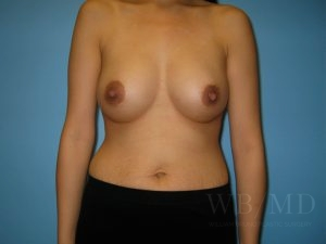 Patient 22a After Breast Augmentation