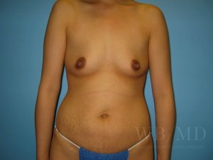 22 - before breast aumentation photo