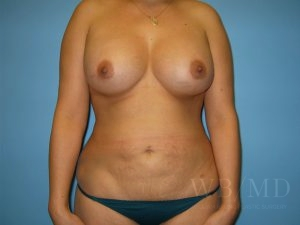 Patient 25a After Breast Augmentation