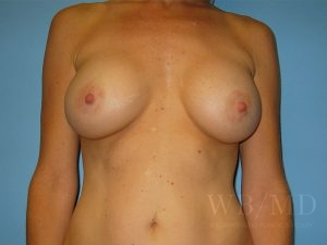 Patient 26a After Breast Augmentation