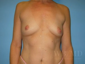 Patient 26a Before Breast Augmentation