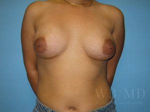 Patient 27a After Breast Augmentation
