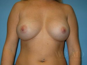 Patient 28a After Breast Augmentation