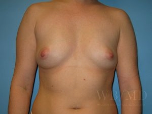 Patient 28a Before Breast Augmentation