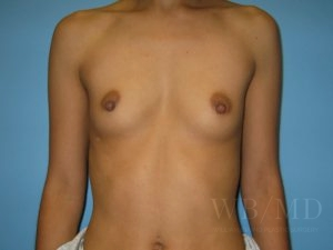 Patient 29a Before Breast Augmentation