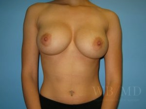 Patient 30a After Breast Augmentation