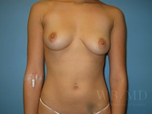 Patient 30a Before Breast Augmentation