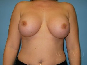 Patient 31a After Breast Augmentation