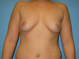 Patient 31a Before Breast Augmentation