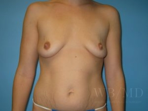 Patient 32a Before Breast Augmentation