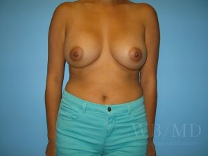 Patient 50a After Breast Augmentation